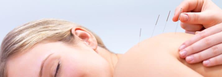 Chiropractic Lakewood CO Dry Needling